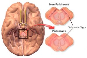 The Parkinson's Disease Protocol Review