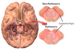 The Parkinson's Disease Protocol Review