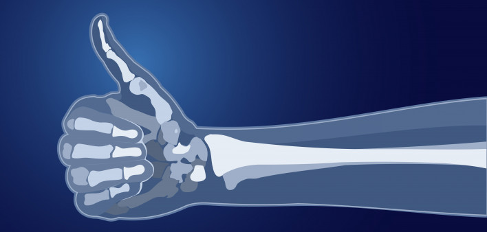 The Bone Density Solution Program - Worth It?
