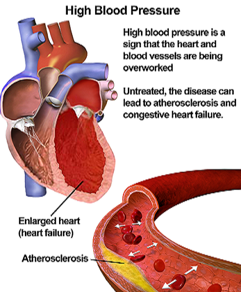 Total Blood Support Pills Reviews - Herbal Remedy for Blood Pressure