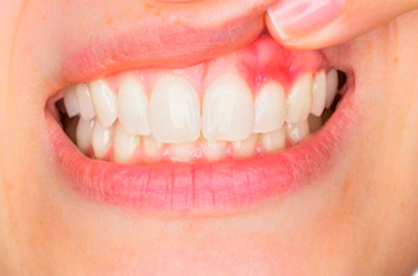Denti Strength Supplement Reviews