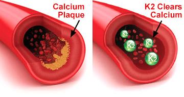 Peak Cardio Platinum Before and After