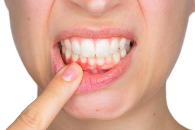 Dentitox Pro Teeth & Gum Diseases Support Formula