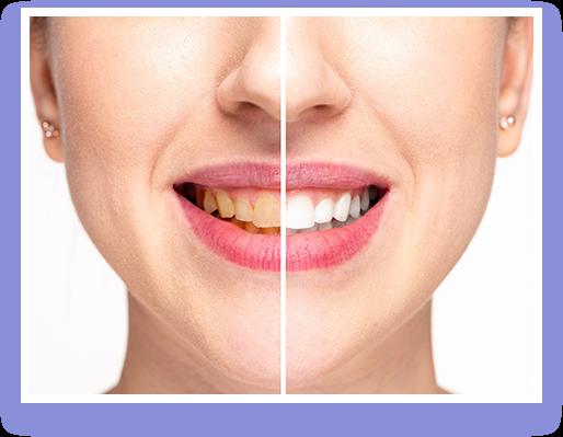 Primal Life Organics LED Teeth Whitening System Price